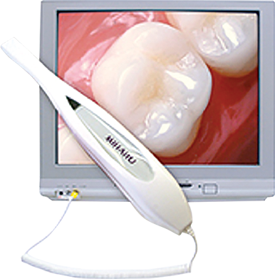 Intra-Oral-Camera